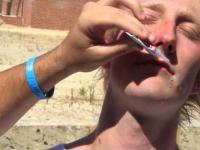 Przykleił sobie usta klejem typu Super Glue
