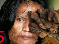 5 Najdziwniejszych ludzkich chorób
