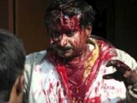 Lampart zaatakował miszkańców Guwahati w Indiach