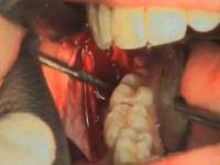 ekstrakcji zęba mądrości