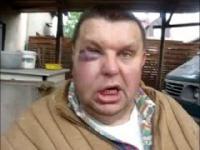Krzysztof Kononowicz został pobity! - czy to próba zabójstwa?