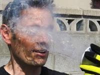Ciekły azot vs ludzka skóra