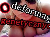 10 Przerażających ludzkich deformacji genetycznych