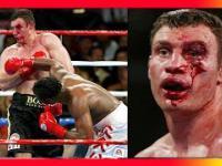 Brutalne walki bokserskie