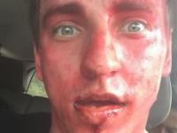 Gwiazda Youtube'a bliska śmierci podczas kręcenia idiotycznego starcia z bykiem