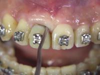 Wyrywanie zęba nowoczesną technologią