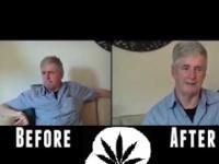 Działanie medycznej marihuany w praktyce - Chory na parkinsona zażywa lek w postaci oleju konopnego