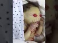 Kobieta w Turcji urodziła dziecko z rzadką chorobą genetyczna