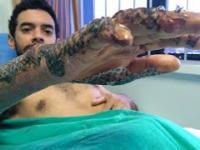 Bandaż ze skóry ryb nadzieją dla poparzonych pacjentów