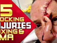 15 poważnych urazów w walkach