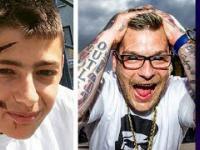 Pociął twarz dla swojego IDOLA! 5 Szokujących operacji, o których mogłeś nie wiedzieć