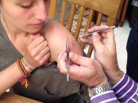 Usuwanie larw gza z ramienia kobiety