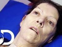 Kobieta wychodzi z 2 letniej śpiączki po podaniu leku