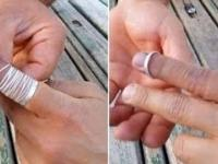 Jak zdjąć zblokowaną obrączkę z palca?