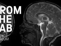 Zdumiewające pulsowanie mózgu podczas bicia serca