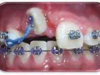 Aparat ortodontyczny potrafi robić cuda!