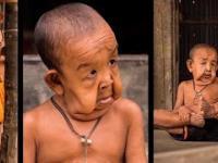 Ten chłopiec od urodzenia wygląda jak STARY CZŁOWIEK