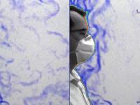 Demonstracja działania maseczki przy użyciu metody obrazowania smugowego