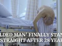 Zgięty przez 28 lat mężczyzna w końcu się prostuje